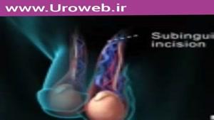 جراحی واریکوسل