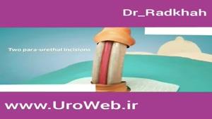 جراحی افزایش سایز آلت تناسلی