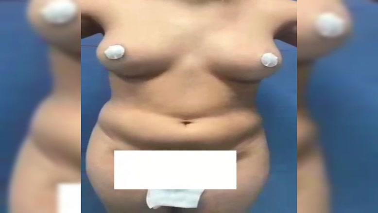 جراحی همزمان لیپوماتیک شکم و پهلو و تزریق چربی به باسن