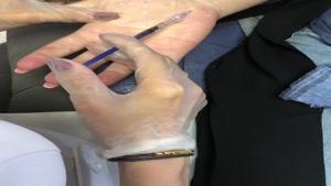 تزریق بوتاکس کف دست