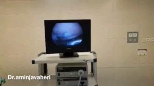 آرتروسکوپی بازسازی رباط صلیبی زانو توسط دکتر علیرضا امین جواهری