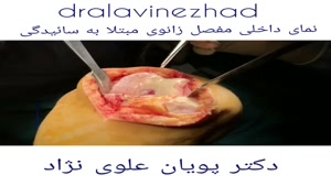 جراحی آرتروز زانو