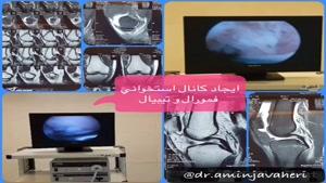 عمل آرتروسکوپی بازسازی رباط صلیبی زانو توسط دکتر علیرضا امین جواهری