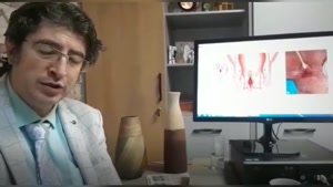 علائم و علت فیشر یا شقاق مقعدی