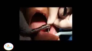 جراحی یک واحد ایمپلنت دندان شماره ۵