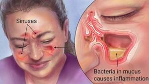 علائم و مشکلات سینوزیت را بشناسیم