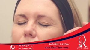 تزریق بوتاکس | فیلم تزریق بوتاکس | کلینیک پوست و مو رز |۱۲