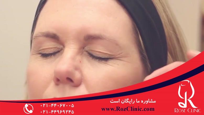 تزریق بوتاکس | فیلم تزریق بوتاکس | کلینیک پوست و مو رز |12
