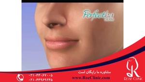 تزریق چربی | فیلم تزریق چربی | کلینیک پوست و مو رز | شماره۱۸