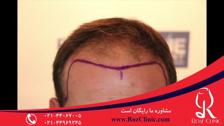 کاشت مو | فیلم کاشت مو | کلینیک پوست و مو رز | شماره 21
