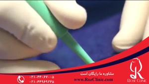تزریق چربی | فیلم تزریق چربی | کلینیک پوست و مو رز | شماره۱۹