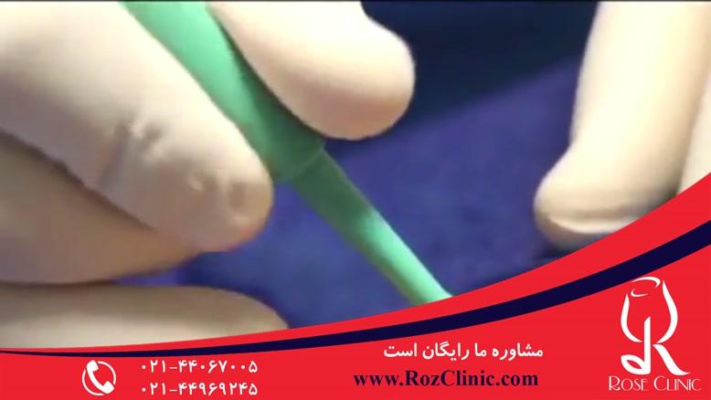 تزریق چربی | فیلم تزریق چربی | کلینیک پوست و مو رز | شماره19