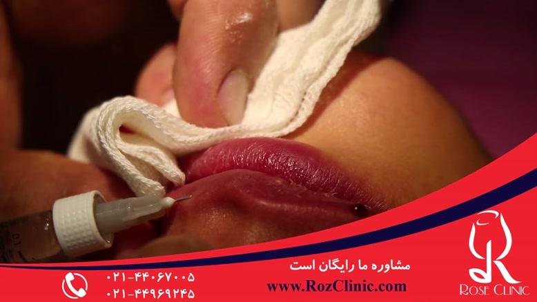 تزریق ژل | تزریق ژل لب | فیلم تزریق ژل | کلینیک پوست و مو رز | 11