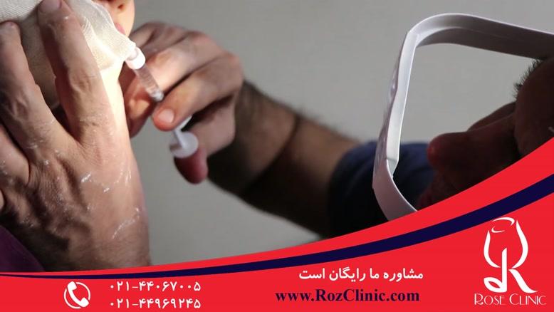 تزریق ژل | تزریق ژل لب | فیلم تزریق ژل | کلینیک پوست و مو رز | 12