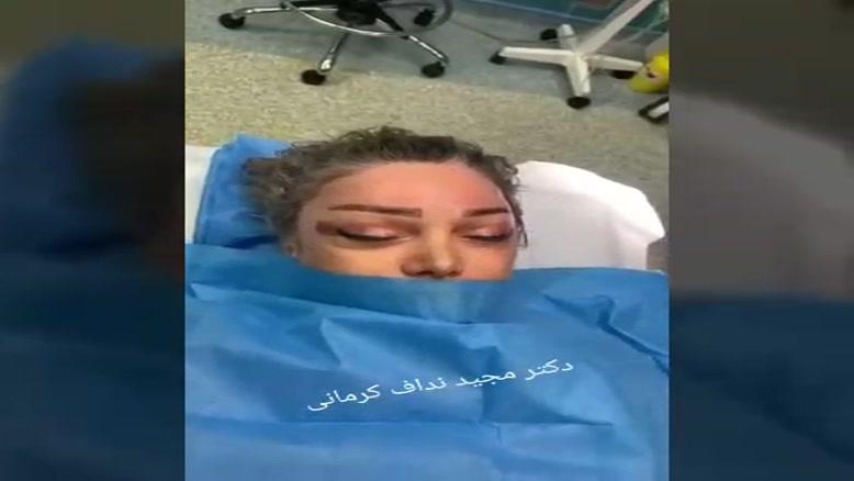 جراحی لیف آندوسکوپیک ابرو توسط دکتر مجید نداف کرمانی