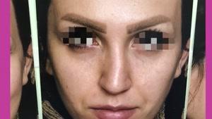 جراحی بینی با اصلاح تیغه میانی