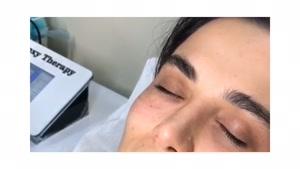 کربوکسی تراپی زیر چشم