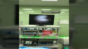 جراحی مجدد تعویض مفصل توسط دکتر علوی نژاد