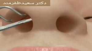 جراحی قوز بینی