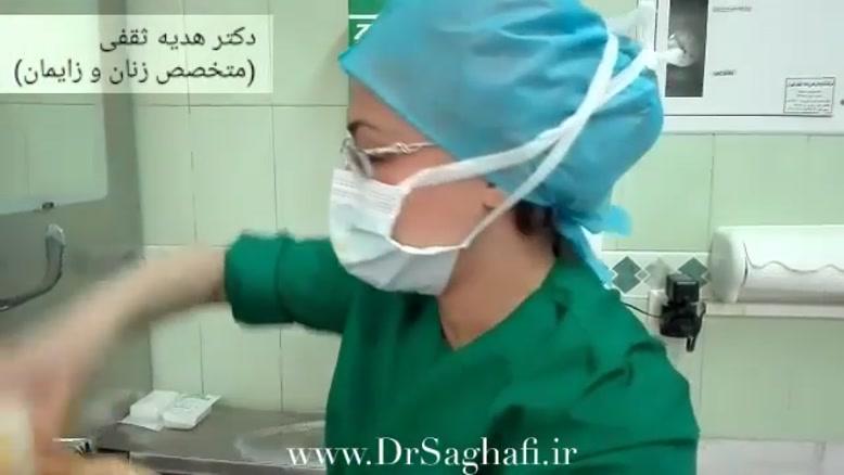لابیاپلاستی دکتر هدیه ثقفی