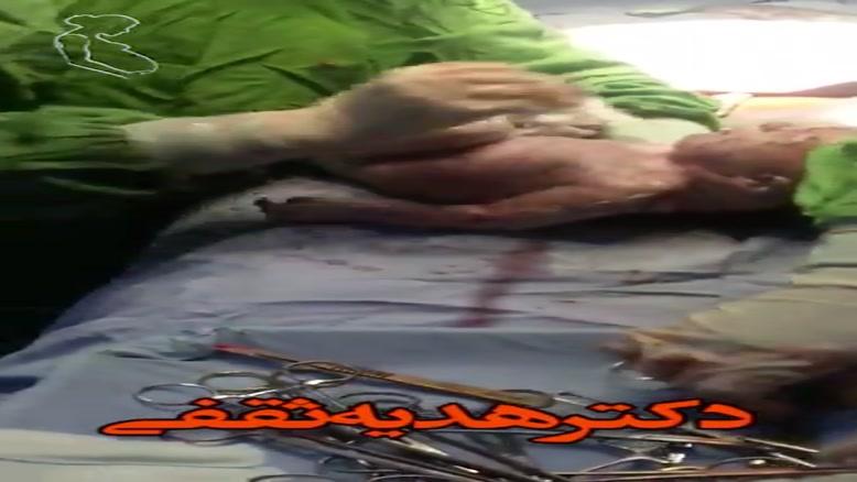 زایمان سزارین توسط دکتر هدیه ثقفی