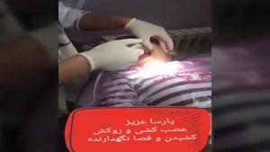 عصب کشی و  روکش دندان