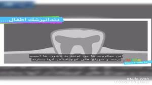 تشکیل پلاک دندان