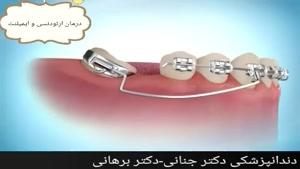 درمان همزمان ارتودنسی و ایمپلنت