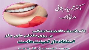 دندان هایتان را با لمینت زیباتر کنید