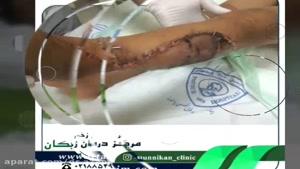 معجزه ای برای محمد حسین - کلینیک مانیکان