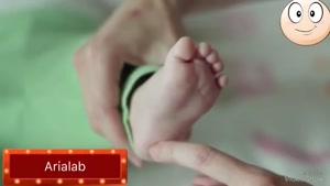 تست رفلکس در نوزاد