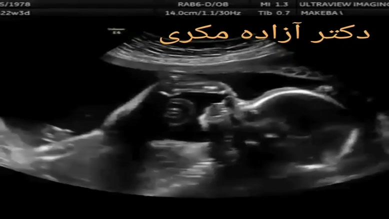سونوگرافی بارداری دو قلو