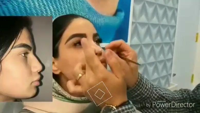 جراحی بینی در مشهد | مشاوره رایگان 09380000893