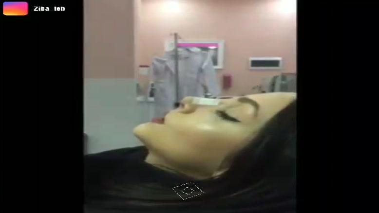 چسب زدن به بینی بعد از جراحی بینی در مشهد 09380000893