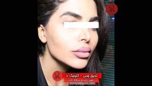 تزریق چربی | فیلم تزریق چربی | کلینیک پوست و مو رز | شماره 65