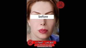 تزریق چربی | فیلم تزریق چربی | کلینیک پوست و مو رز | شماره  62