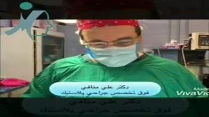 فیلم جراحی لیفت ابرو توسط دکتر علی منافی
