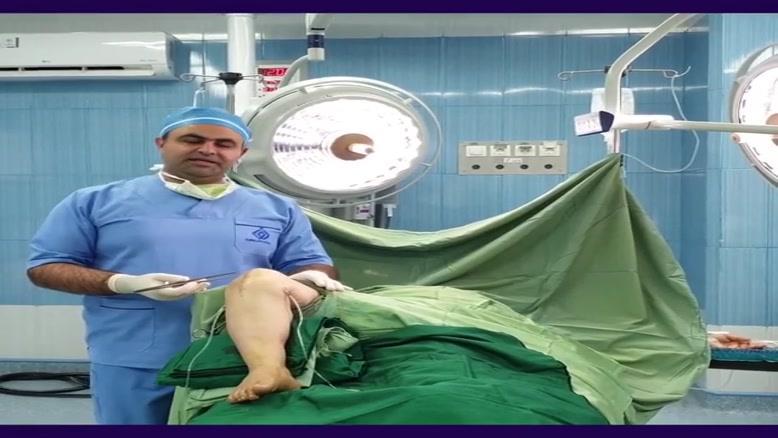 نتیجه عمل تعویض مفصل زانو