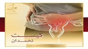 علائم کیست تخمدان و راه های درمان آن