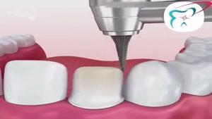 درمان زیبایی لمینت دندان