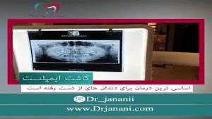 کاشت ایمپلنت اساسی ترین درمان برای دندان های از دست رفته است