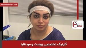 کاشت ابرو   فیلم کاشت ابرو   کلینیک پوست و مو هلیا   شماره 29