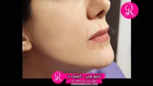 تزریق چربی | فیلم تزریق چربی | کلینیک پوست و مو رز | شماره 68