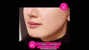 تزریق چربی | فیلم تزریق چربی | کلینیک پوست و مو رز | شماره 66