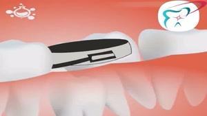 فضا نگهدارنده دندان