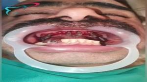 جراحی فول ایمپلنت فک بالا توسط دکتر شهریار جنانی
