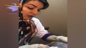 برداشتن خال سطحی از کنار بینی توسط دکتر حبیبی زاده