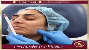 تزریق بوتاکس در تهران