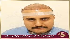 مصاحبه بعد از انجام عمل کاشت مو در مرکز زیبایی تهران