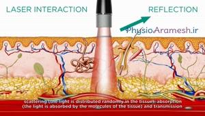 لیزر درمانی نقاط سوزشی  بدن